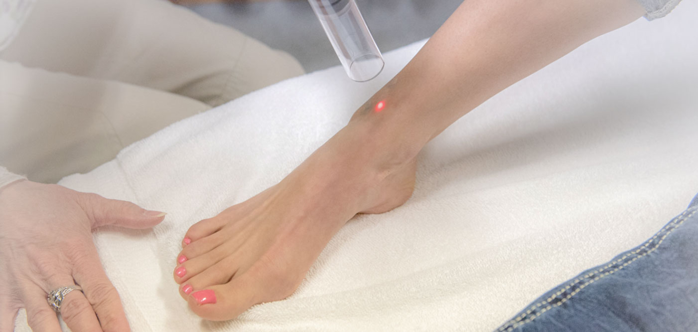 Laser Skin Treatment - Eagle Idaho